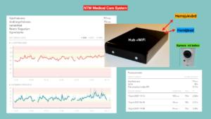 Produktbild NTM Medical Care System och grafer som visar data systemet samlar in